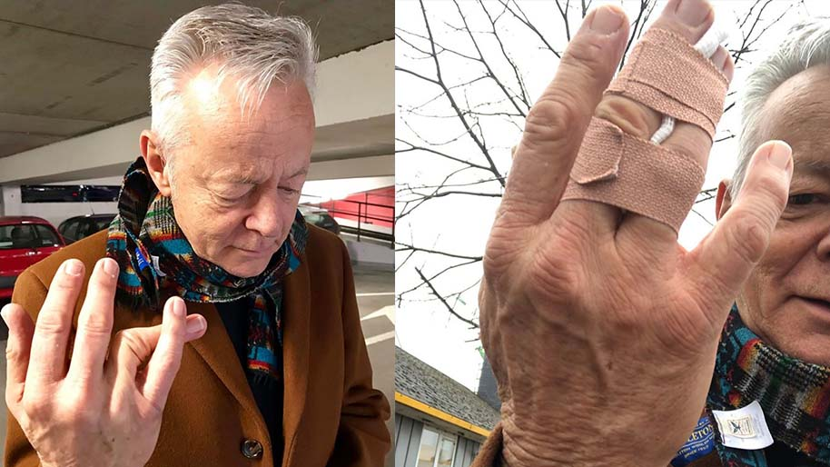 tommy emmanuel finger injury